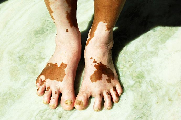 Las cremas de las manchas de pigmento sobre la persona el rating