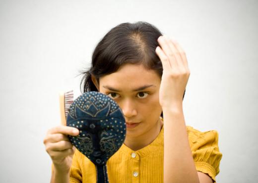 La calvicie es cada vez más frecuente en mujeres