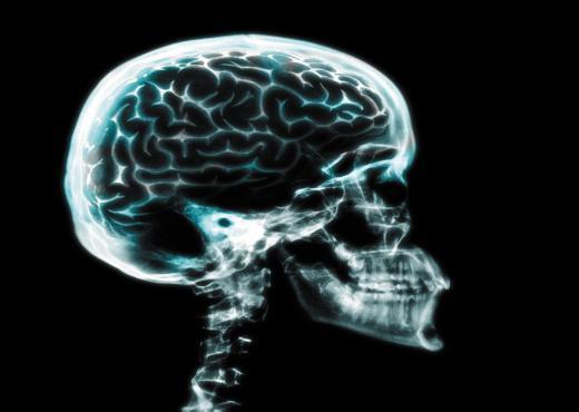 El consumo de alcohol encoge el cerebro