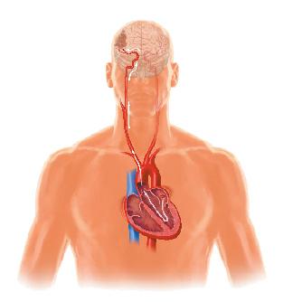 Cada vez hay más accidentes cerebrovasculares