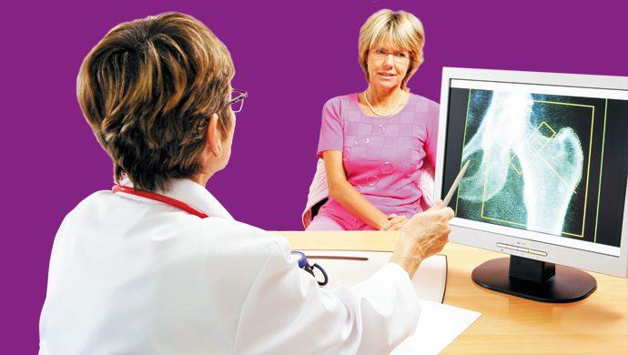 Osteoporosis: lo que debe saber