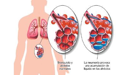 Neumonía, la principal causa de muerte en niños