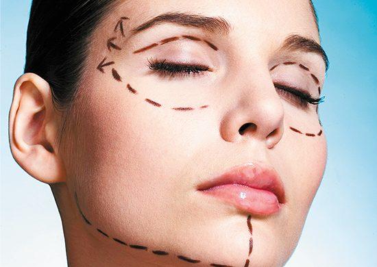 ¿Cirugías estéticas antes de los 18 años?