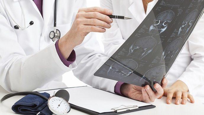 Tumores cerebrales, una batalla para la medicina