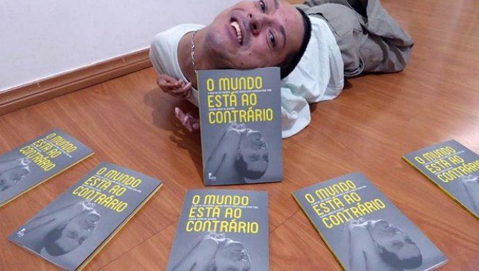 Brasileño que nació con la cabeza al revés lanza un libro sobre sus desafíos