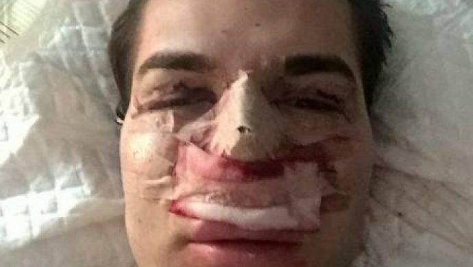 El Ken humano es atacado por una bacteria comedora de carne