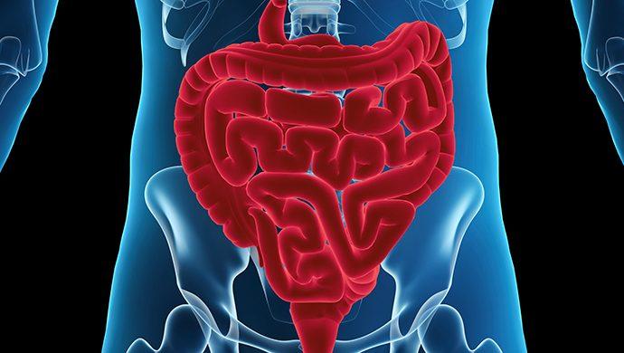 Perforación intestinal, riesgo de muerte