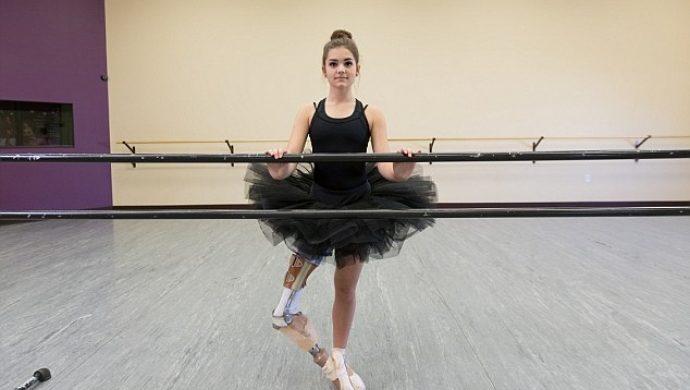 Bailarina a la que le amputaron la pierna vuelve a bailar