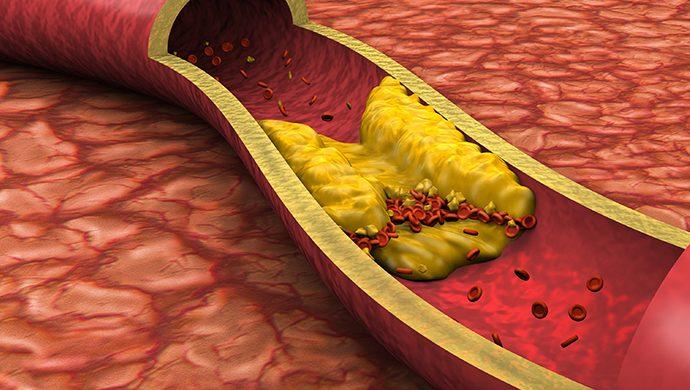 Colesterol alto, un mal silencioso pero letal