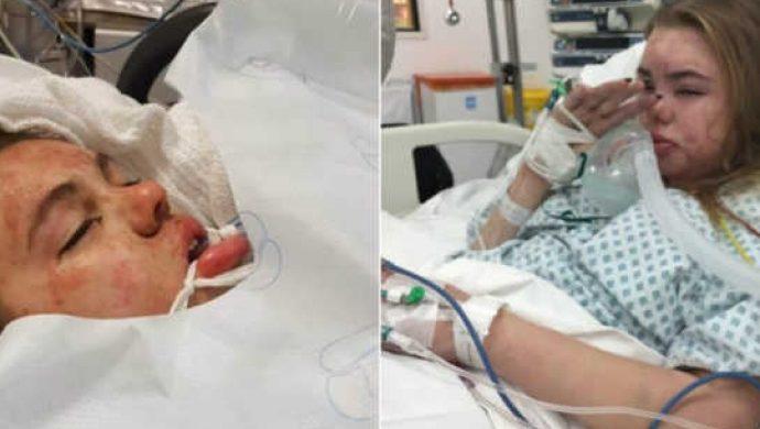 Madre publica la foto de la hija internada como una advertencia sobre el peligro de las drogas